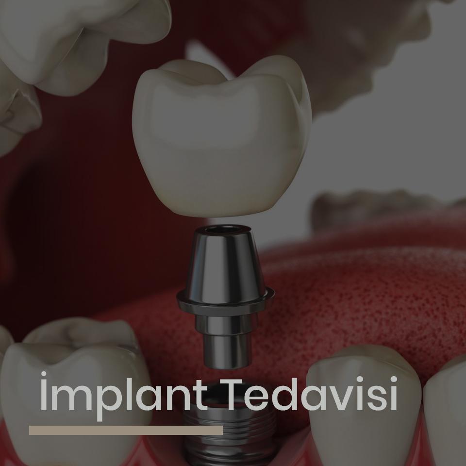 implant_22