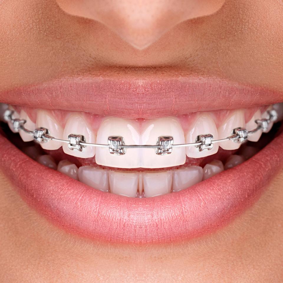 ortodontii